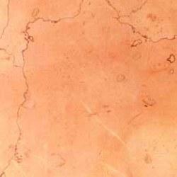 Агломерированный мрамор ROSA PERLINO